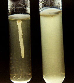 gemoliticheskaya-e-coli-v-sperme